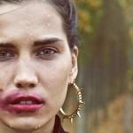 Герпес — «губная» простуда
